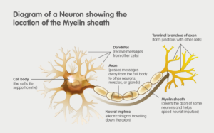 Metachromatic Leukodystrophy (MLD), diagram of a neuron showing the location of the Myelin sheath